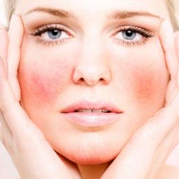 Аллергия на коже лица - причины аллергических реакций
