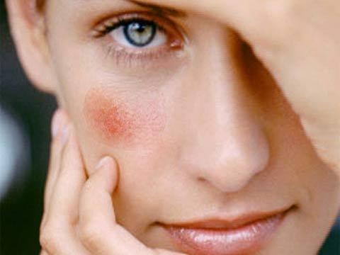 расширенные капилляры на лице