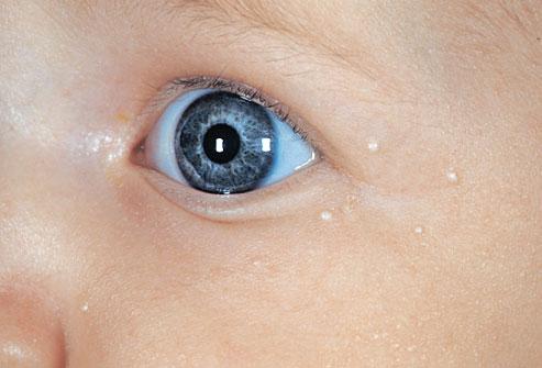 жировики на лице ребенка