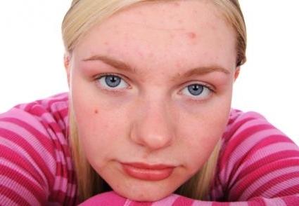 фурункулы на лице