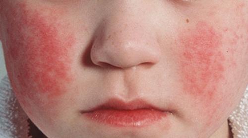 причины появления сыпи на лице