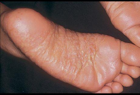 аллергический дерматит на ногах фото у взрослых