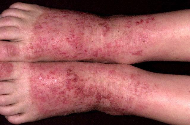 дерматит на ногах