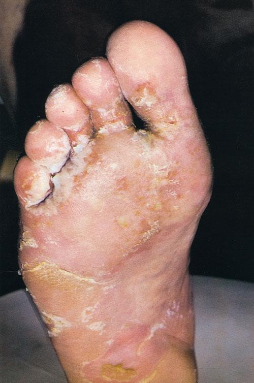 дерматомикоз стопы