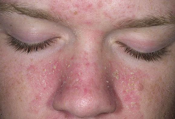 Прыщи на спине лечение и профилактика в домашних условиях и у косметолога