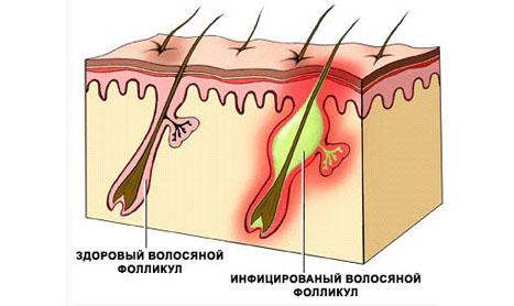 Воспаленный волосяной фолликул