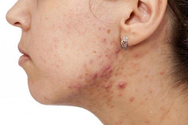 Появление акне симптом вирилизма