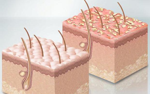 Перхоть - это отслоившиеся частички кожи