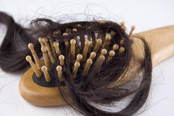 Лезут волосы клочьями
