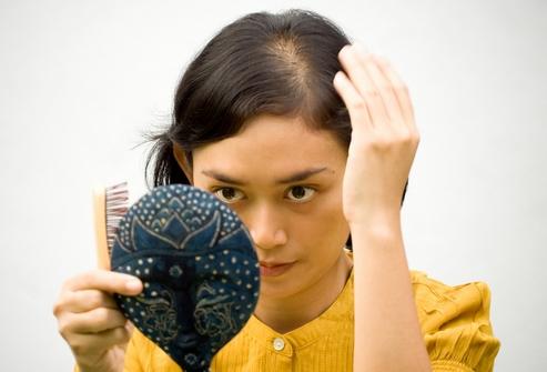 Почему лезут волосы