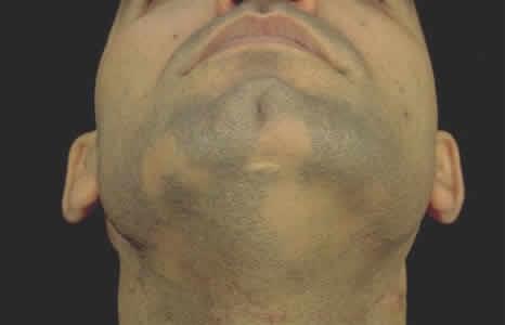 Алопеция у мужчин на бороде