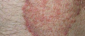 дерматомикоз