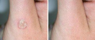 удаление бородавок: до и после