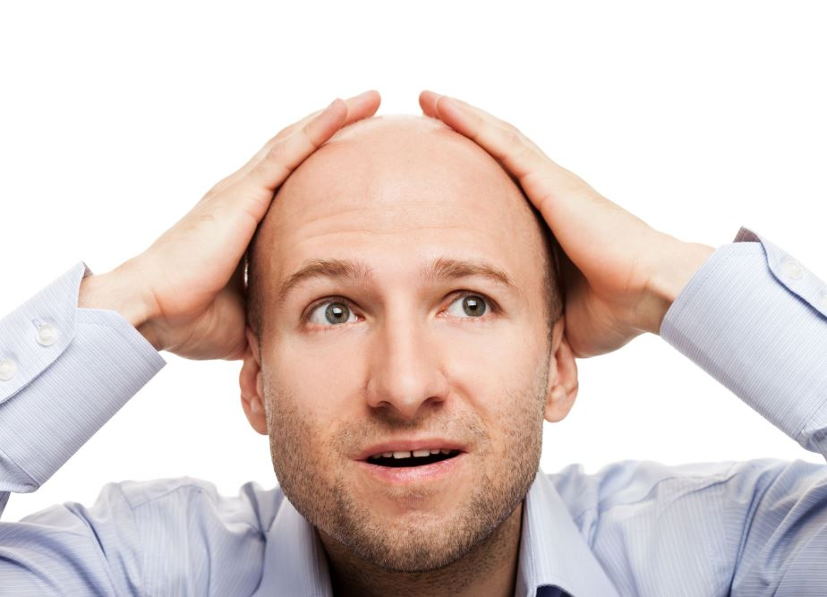 Алопеция у мужчин на голове виды, причины и лечение мужского облысения