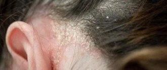 Микоз кожи головы